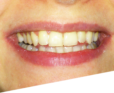 bolesti-zuba.png
