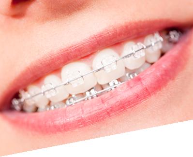 ortodoncija.png